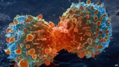 cancer-cell-2