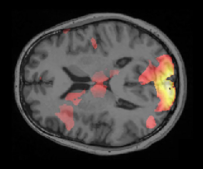 One of the volunteer's brain scan mapped with AI.