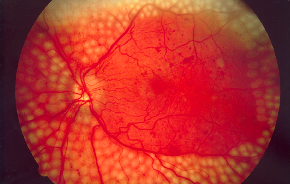 Diabetic Retinopathy can be diagnosed using Google's new deep learning technology