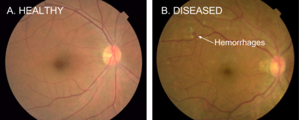 Difference Between A Healthy & Diseased Eye
