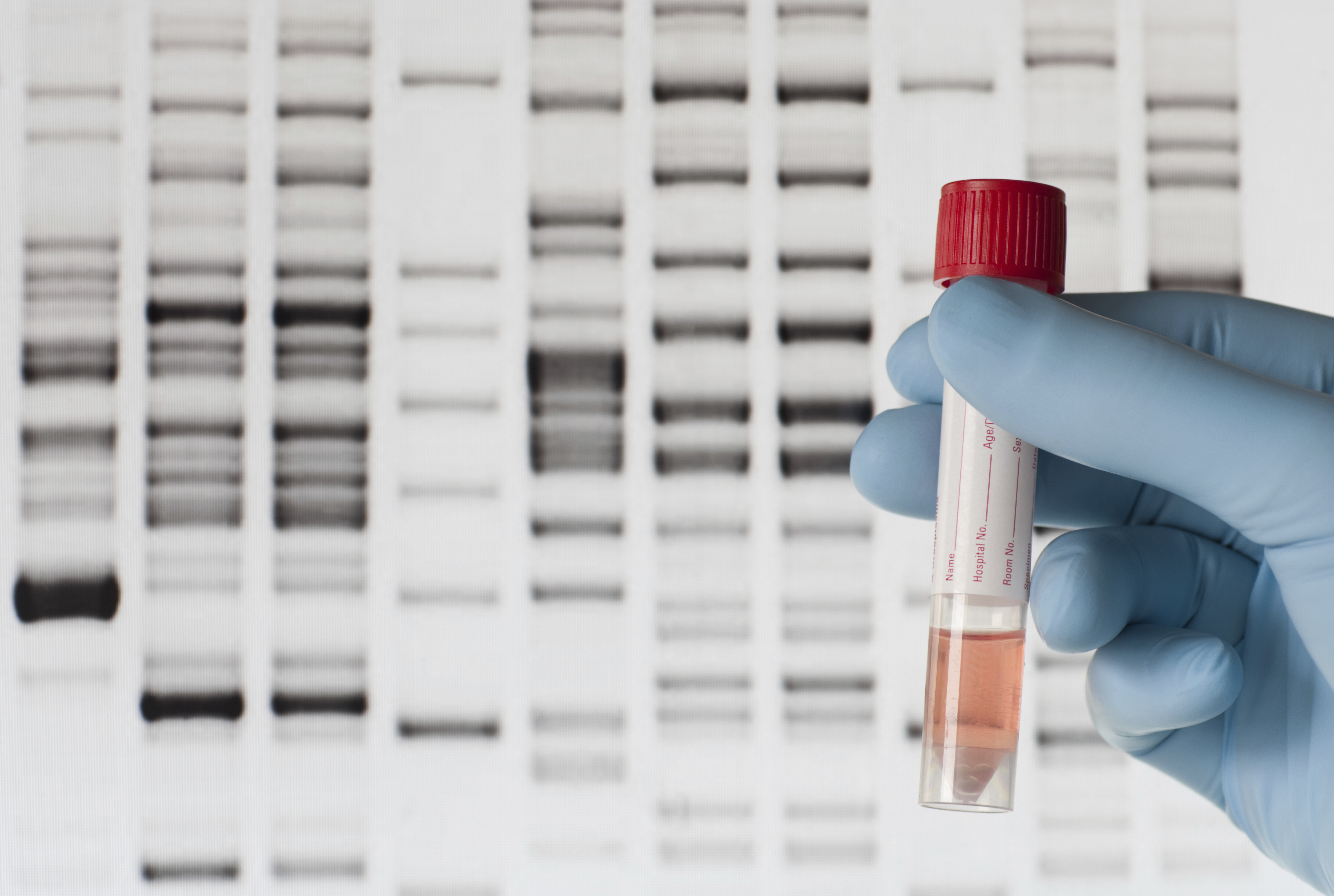DNA Testing Firms Promise Not to Share Data Without User Consent